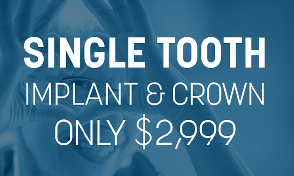 special offer on single tooth implant and crown