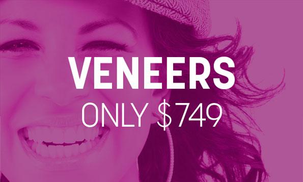 special offer on veneers