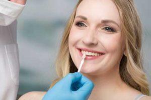 dentist cleaning woman's teeth during dental veneer services tx to prepare them for dental veneers tx