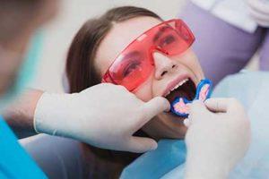 woman starting fluoride treatments in tx at Lovett Dental's fluoride treatment in meyerland plaza tx