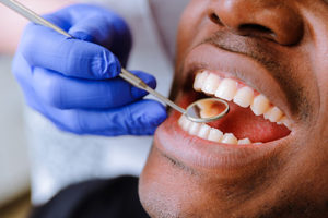 dentist using mirror to examine patient teeth for dental bonding meyerland plaza tx
