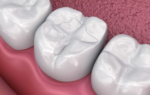graphic of dental fillings and sealants meyerland plaza tx