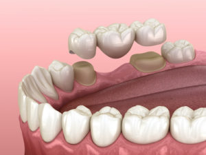 the function of dental crowns and bridges